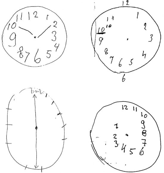 clock+drawing+test+dementia
